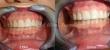 Ideal - Leone - Láthatatlan fogszabályozó készülék - Előtte, utána