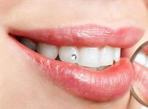 Fogékszer (fogkristály, fogpiercing) Zugló