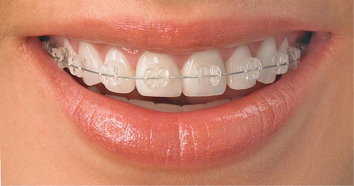 Fogszabályozás Zugló - Felnőttkori fogszabályozás